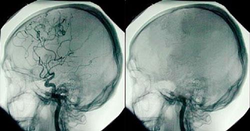 Bộ não của người bị chết não.