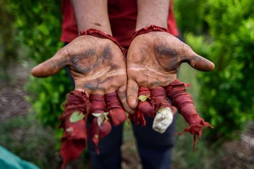 Một di dân Venezuea chìa đôi bàn tay trầy xước vì hái lá coca trong các đồn điền ở Colombia hôm 9/2. Ảnh: AFP.