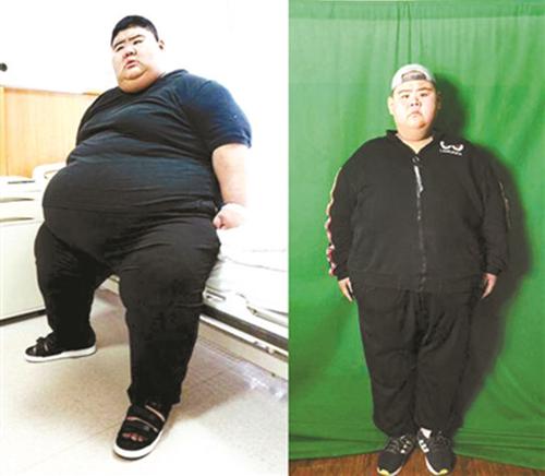 Wang Haonan trước (trái) và sau khi phẫu thuật giảm cân. Ảnh: Beijing Youth Daily