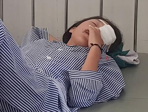 Nữ sinh 14 tuổi bị chấn thương mắt. Ảnh: Đ.H