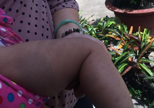 Vết bầm ở chân cháu bé nghi bị bà Loan đánh. Ảnh: Thái Hà