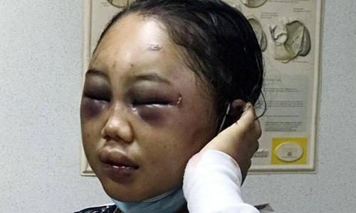 Cô gái 19 tuổi người Indonesia làm nghề giúp việc bị chủ Malaysia hành hung. Ảnh: Straits Times.