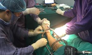 Phẫu thuật kéo dài chân tăng chiều cao tới 10 cm