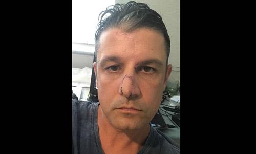 Khuôn mặt của David Goodhue sau ba cuộc phẫu thuật tái tạo mặt. Ảnh: Colleen McKeown-Goodhue