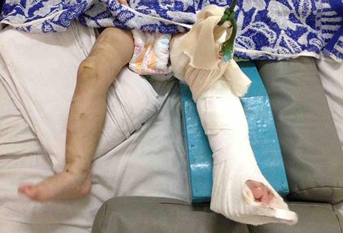 Bé gái bị mẹ nuôi đánh gãy chân. Ảnh: Quế Biên.