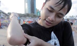 Nhiều người bị sứa chích khi tắm biển Vũng Tàu
