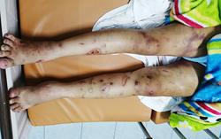 Thai phụ 18 tuổi bị tra tấn hơn 20 ngày ở Sài Gòn  - 1