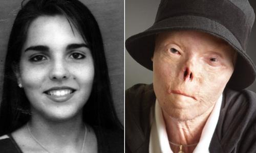 Cuộc đời của cô gái Venezuela bị biến dạng mặt vì tài xế say rượu