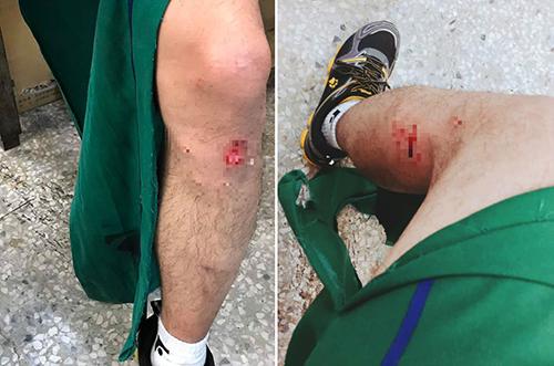 Các vết thương hở trên chân trái nạn nhân.