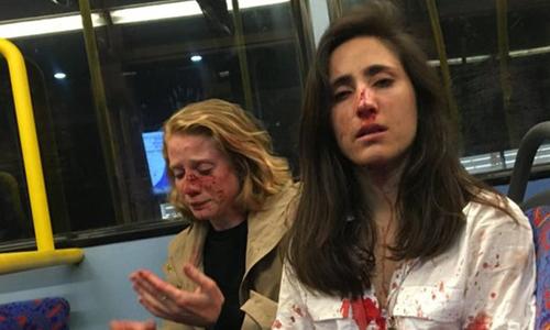 Geymonat (phải) và bạn gái Chris (trái) bị đánh trên xe buýt London. Ảnh: Geymonat.