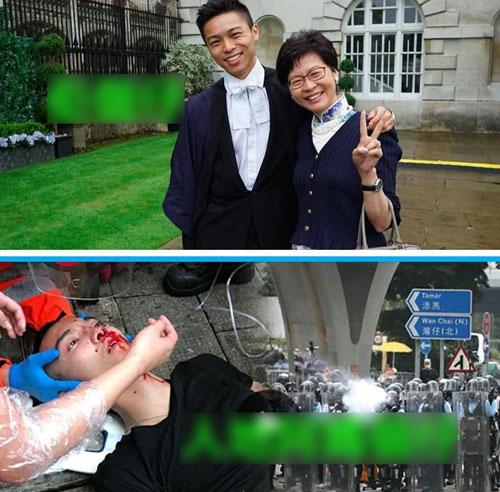 Bức ảnh ghép lan truyền trên mạng xã hội ở Hong Kong so sánh giữa con trai bà Lam với một người biểu tình bị trúng đạn cao su của cảnh sát. Ảnh: Facebook.
