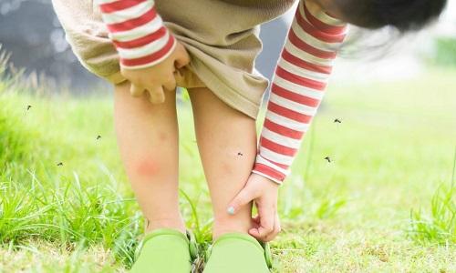Các chuyên gia khuyến cáo không nên gãi nốt muỗi đốt. Ảnh: Live Science.