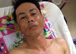 Nghi can Phan Văn Tâm tại bệnh viện. Ảnh: Hồng Tuyết.