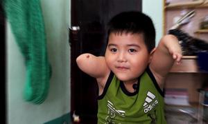Nghị lực của cậu bé bị trêu 'tay đùi gà' ở Nha Trang