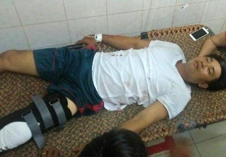 Nạn nhân Trần Minh Triết bị bắn vào chân.