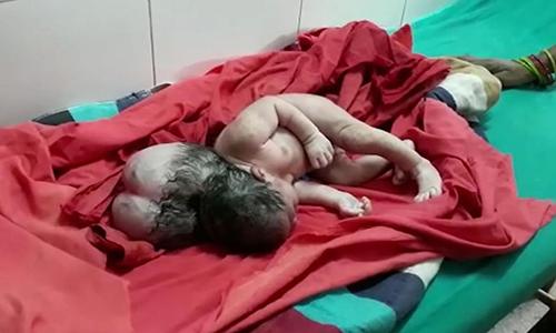 Bé sơ sinh ở bang Uttar Pradesh, Ấn Độ, sinh ra với dị tật hộp sọ khiến em trông như có ba đầu. Ảnh: Newslions