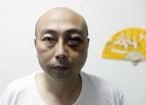 Mắt trái củaông Zhong Zhengye bầm tím do bị bà Phan Thi Ngoc Dung hành hung. Ảnh: Stomp