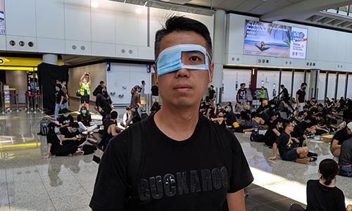 Người biểu tình ở sân bay Hong Kong mang mặt nạ khoét một mắt để ám chỉ việc cảnh sát làm bị thương một phụ nữ tham gia biểu tình. Ảnh: SCMP.