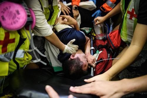 Nam thanh niên thứ hai được đưa đi cấp cứu lúc 0h30 hômnay sau khi bị người biểu tình đánh đập. Ảnh: AFP.