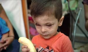 Bé trai Syria bị bom đạn hủy hoại gương mặt