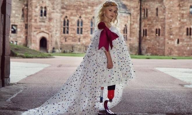 Bé gái cụt chân Anh biểu diễn thời trang