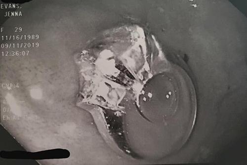 Hình ảnh chiếc nhẫn trong bụng của Evanskhi ca mổ nội soi diễn ra. Ảnh: Facebook/Jenna Evans.