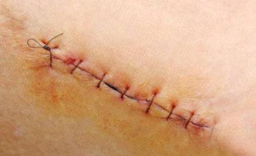 Tại sao vết thương gần lành bị ngứa?