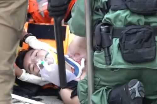 Nam sinh Tsang Chi-kin được sơ cứu sau khi bị cảnh sát bắn ở đường Tai Ho hôm 1/10. Ảnh: SCMP.