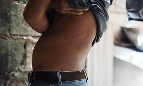 Vết sẹo dài trên cơ thể Danilo sau ca phẫu thuật hiến thận cho một người nhận đến từ Canada hồi năm 2002. Ảnh: Channel News Asia.