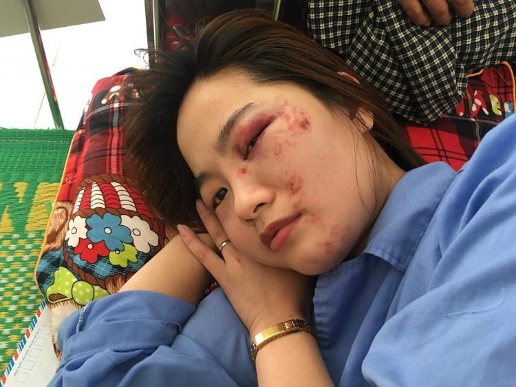 Nữ phụ xe buýt bị hành hung vào ngày 20/10. Ảnh: Gia đình cung cấp