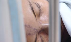 Bé gái 13 tuổi mù mắt sau tiêm nâng mũi