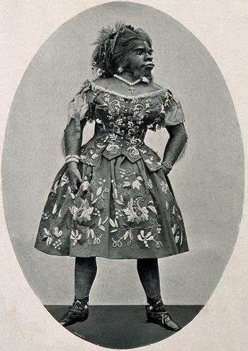 Julia Pastrana vào những năm 1850. Ảnh: Anthropological Institute.