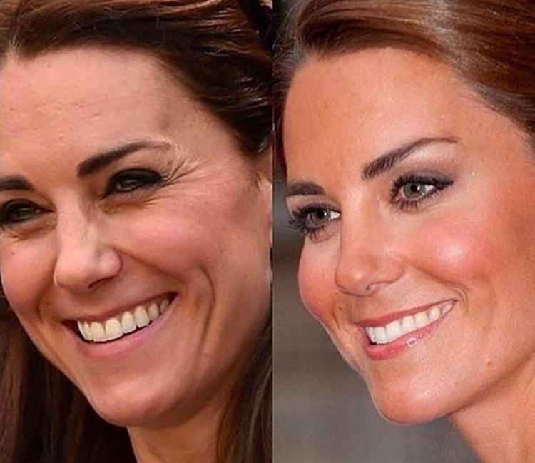 Hai bức ảnh của Công nương Kate được sử dụng trong bài đăng quảng cáo của một thẩm mỹ viện ở London. Ảnh: Mirror.