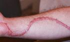 Tại sao khi bị thương ăn rau muống gây sẹo lồi?