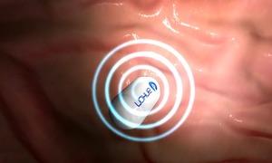 Viên thuốc nội soi