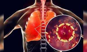 Những câu hỏi về dịch virus corona
