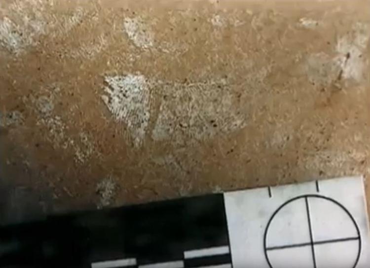 Hơi keo siêu dính làm nổi lên dấu vết trên đùi trái nạn nhân. Ảnh: Filmrise.