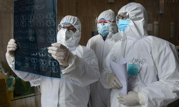 Bác sĩ xem phim chụp tại bệnh viện ở Hồ Bắc ngày 20/2. Ảnh: AFP.