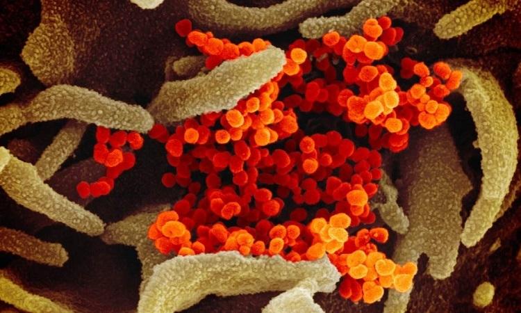 nCoV bám trên tế bào cơ thể người. Ảnh: SCMP.