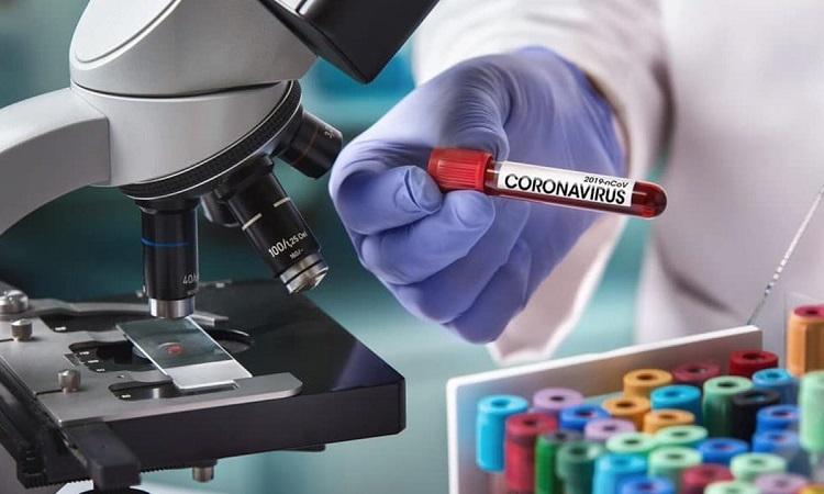 Xét nghiệm huyết thanh được tiến hành dựa trên mẫu máu của bệnh nhân. Ảnh: Live Science.