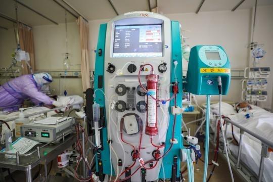 Một máy ECMO nhập khẩu được sử dụng cho bệnh nhân nguy kịch nằm phòng Hồi sức cấp cứu tại Bệnh viện Chữ Thập Đỏ Vũ Hán ngày 28/2. Ảnh: Chen Zhuo/ China Daily.