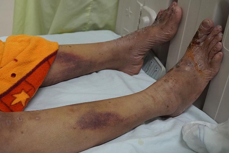 Vết bầm tím ở chân cô gái do bị đánh bằng gậy sắt. Ảnh:Phước Tuấn.