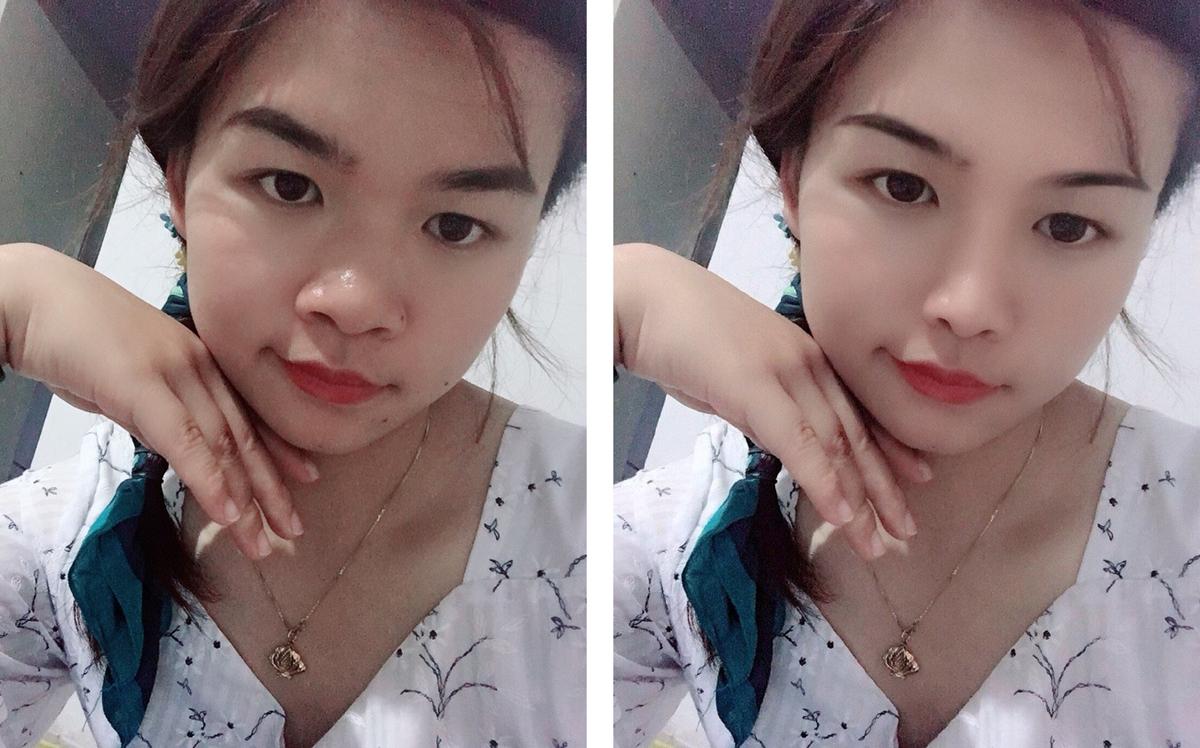 Minh chứng cho thấy việc có một sống mũi cao sẽ giúp bạn trở nên xinh hơn.