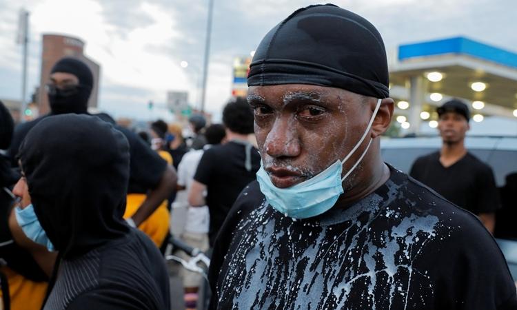 Người biểu tình dội sữa lên mặt sau khi bị phun hơi cay tạiMinneapolis ngày 31/5. Ảnh: Reuters.