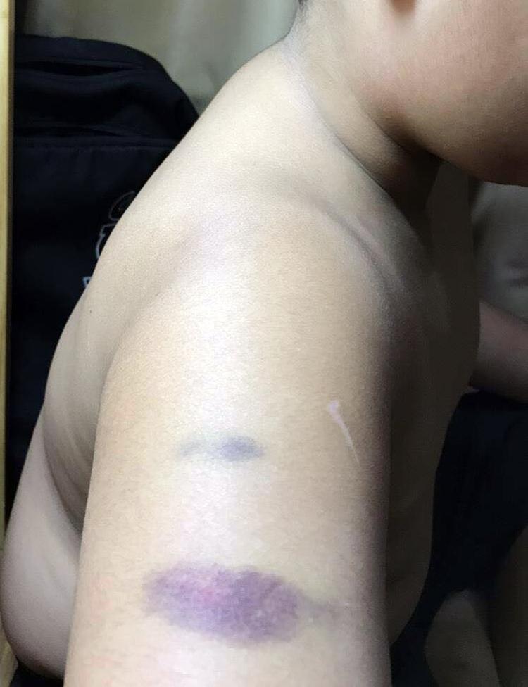 Vết bầm tím trên bắp tay học sinh. Ảnh phụ huynh cung cấp.