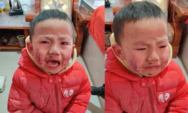 Tự vẽ lên mặt, bé trai òa khóc khi thấy thành quả
