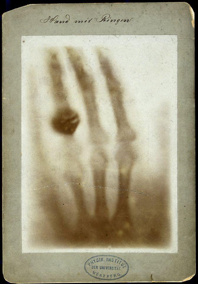 Bức ảnh chụp lại bàn tay vợ bằng tia X đã giúp Wihelm Conard Roentgen nhận giải thưởng Nobel Vật lý năm 1901. Ảnh: Science News.