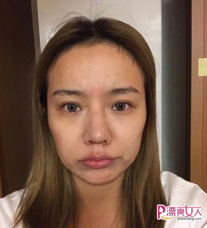 Nước da sạm và có mụn, đôi mắt dại, mũi thô và to dường như chẳng hề liên quan tới hot girl Hiểu Dao trên mạng xã hội.