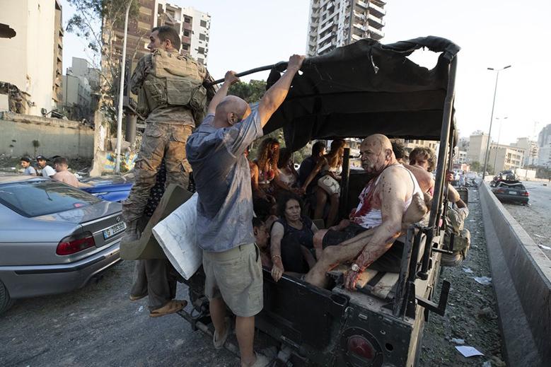 Người bị thương sơ tán bằng xe quân sự. Ảnh: AFP.