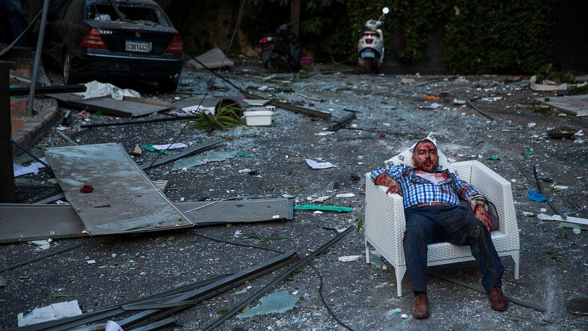 Một cư dân bị thương sau vụ nổ ở Beirut hôm 4/8. Ảnh: Sky News